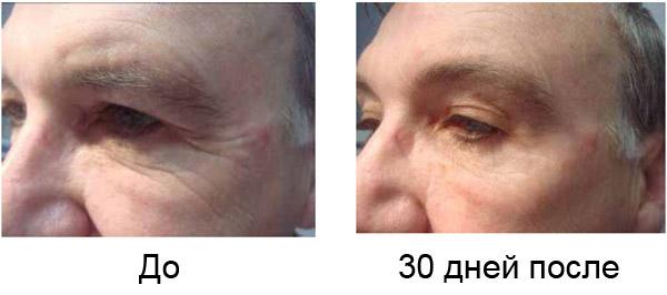Фракционное лазерное омоложение кожи на аппарате smartxide dot со2 лазер лазерная эпиляция рук харьков
